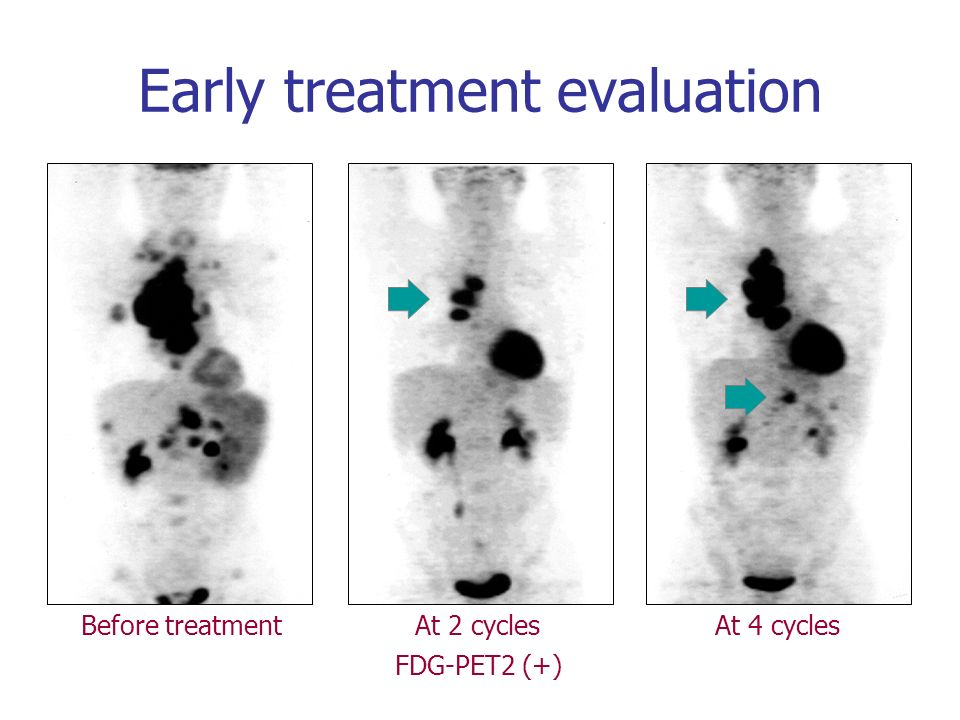 Early treatment evaluation