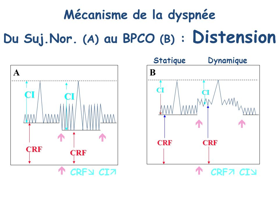 Mécanisme de la dyspnée Du Suj.Nor. (A) au BPCO (B) : Distension