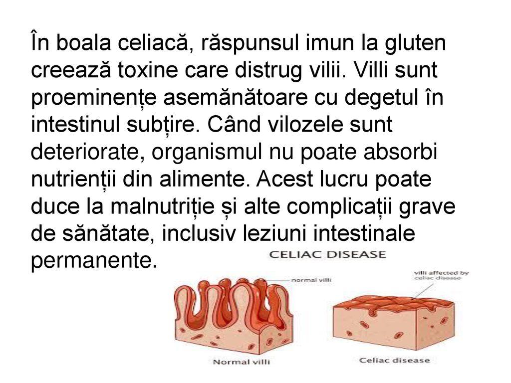 Scaderea in greutate pentru persoanele cu sensibilitate la gluten sau boala celiaca | radiomanea.ro