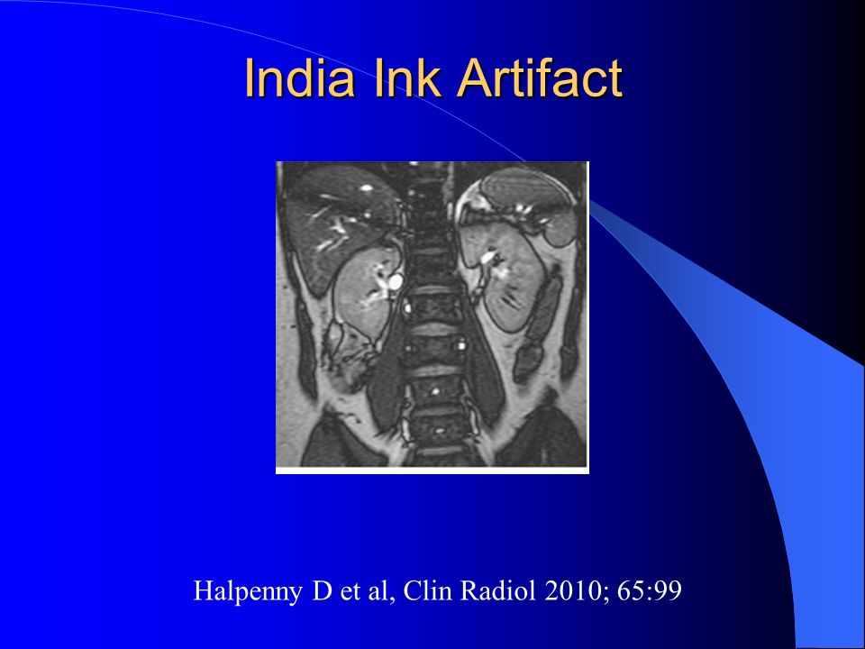 India Ink Artifact Halpenny D et al, Clin Radiol 2010; 65:99