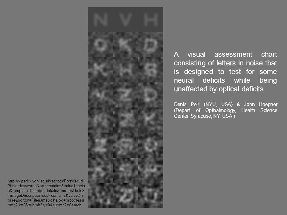 A visual assessment chart consisting of letters in noise that is designed to test for some neural deficits while being unaffected by optical deficits.