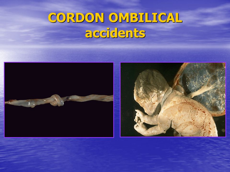 CORDON OMBILICAL accidents