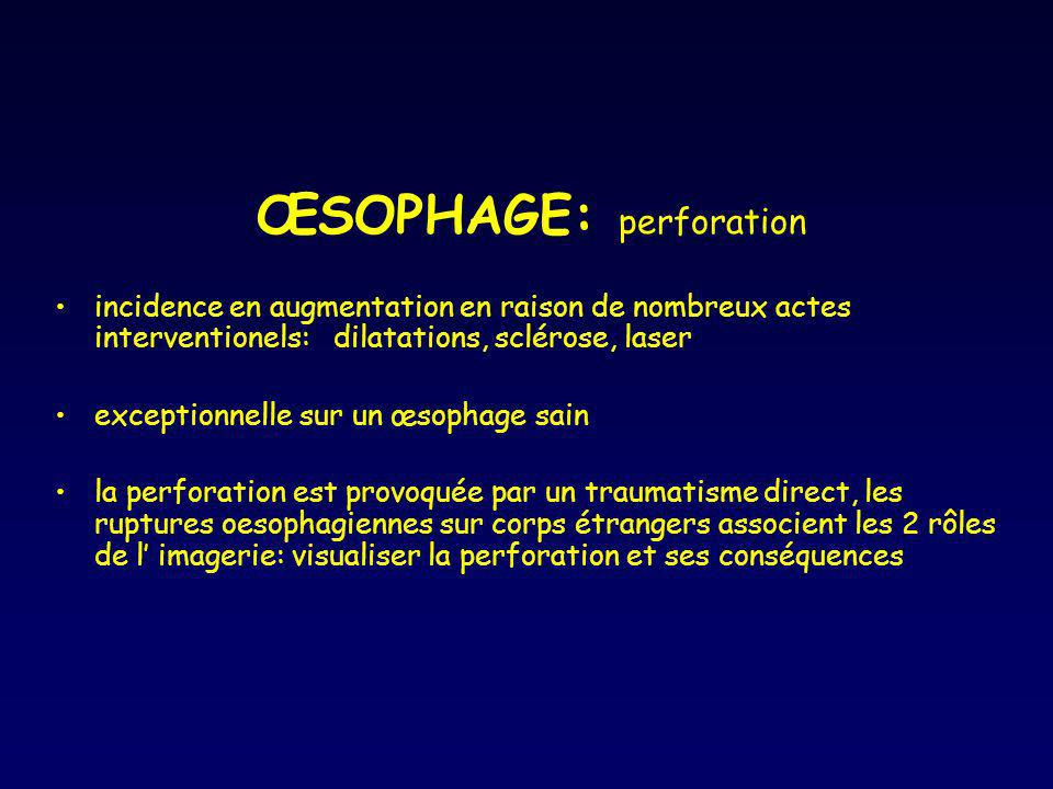 ŒSOPHAGE: perforation
