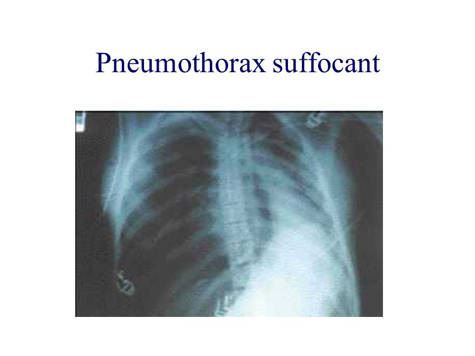 Pneumothorax suffocant