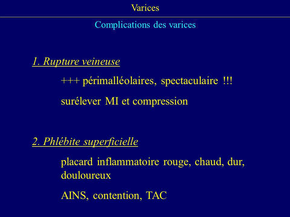 Complications des varices