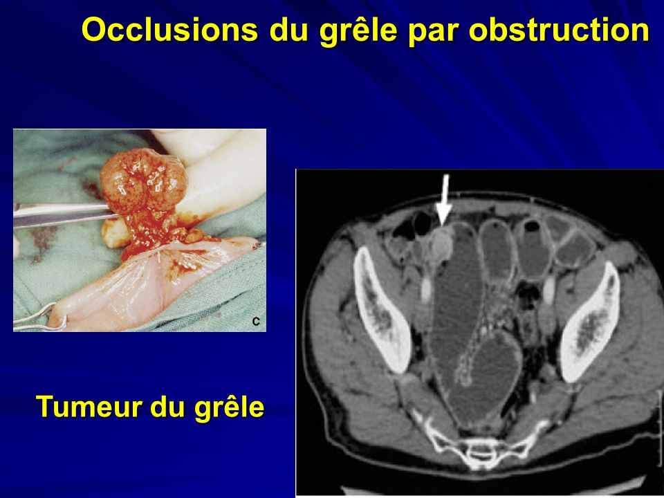 Occlusions du grêle par obstruction