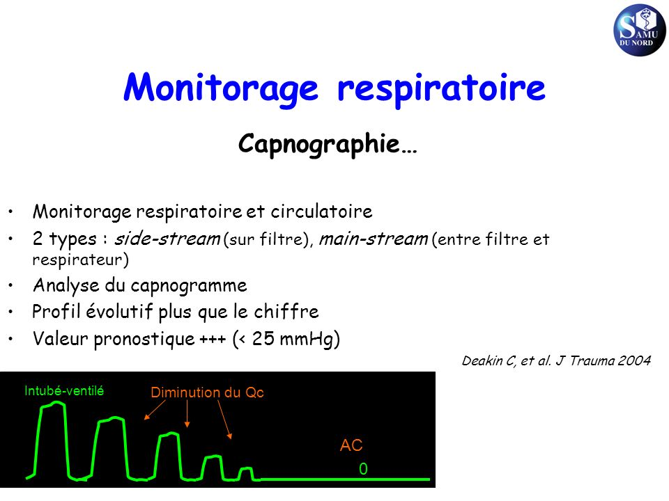 Monitorage respiratoire