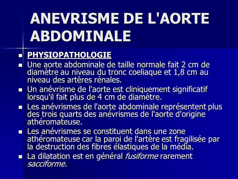 ANEVRISME DE L'AORTE ABDOMINALE - ppt video online télécharger
