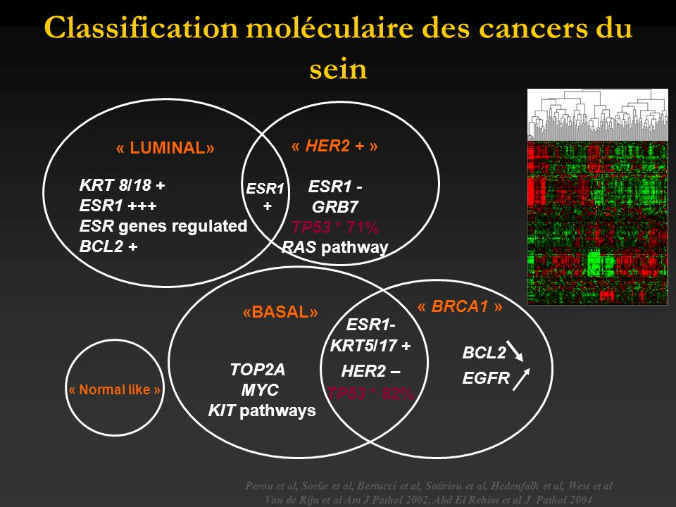 Classification moléculaire des cancers du sein