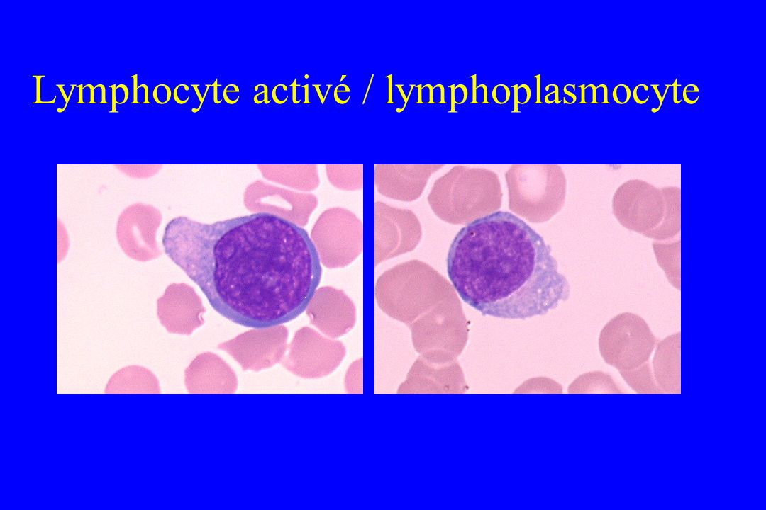 Lymphocyte activé / lymphoplasmocyte
