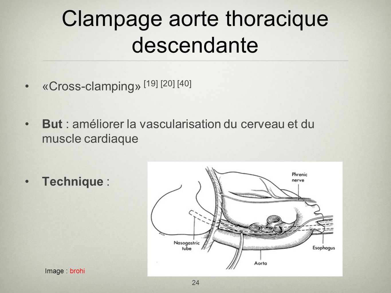 Clampage aorte thoracique descendante