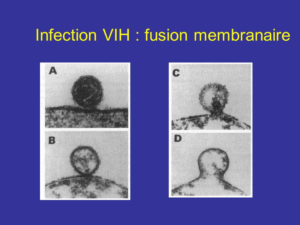 Infection VIH : fusion membranaire