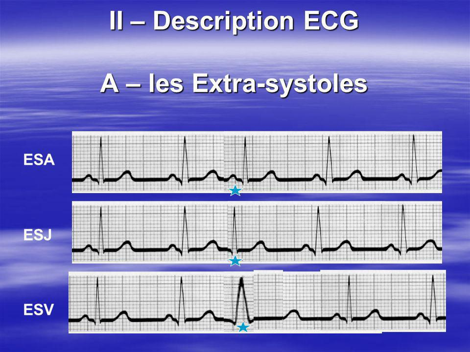 II – Description ECG A – les Extra-systoles