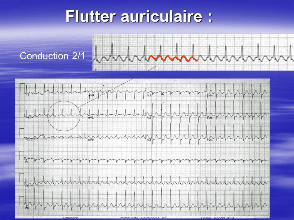 Flutter auriculaire : Conduction 2/1