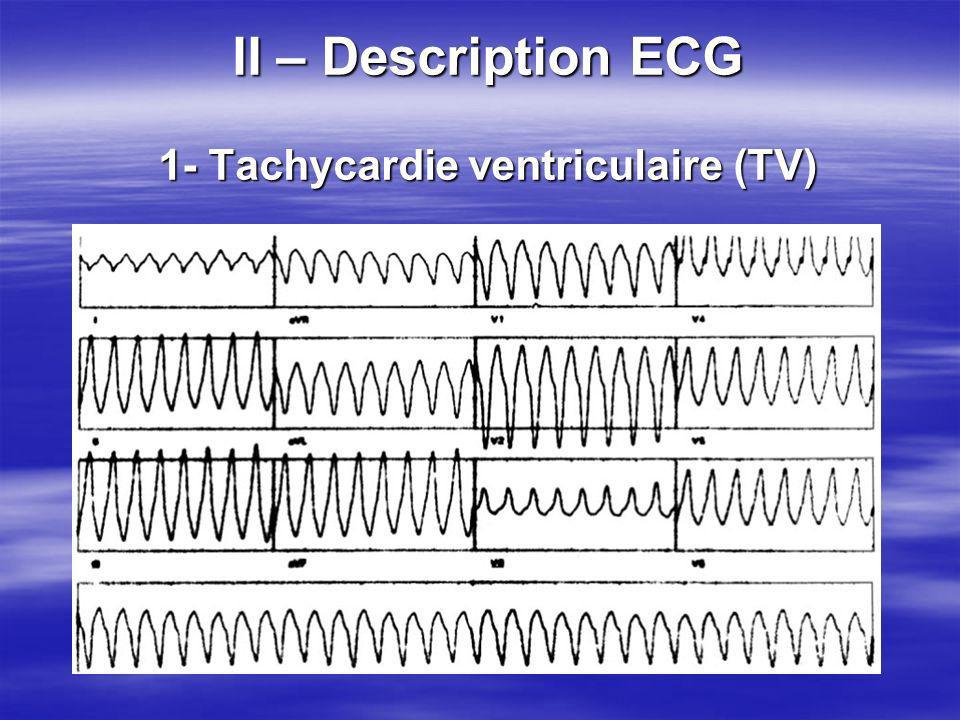 II – Description ECG 1- Tachycardie ventriculaire (TV)
