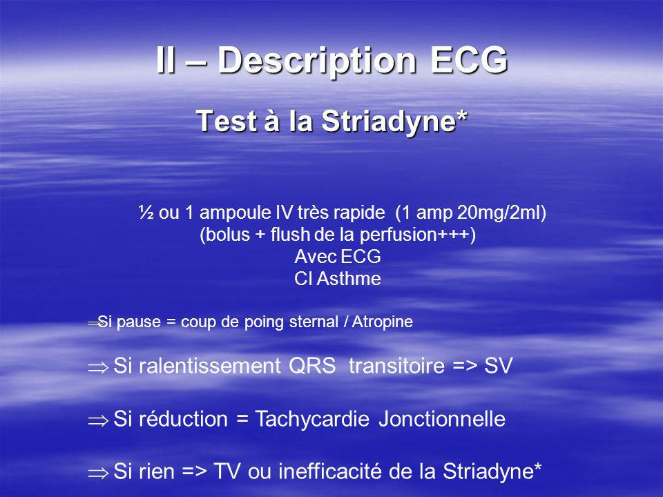 II – Description ECG Test à la Striadyne*
