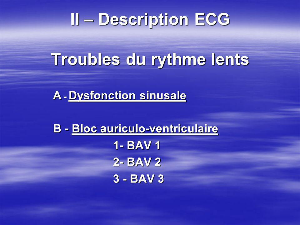 II – Description ECG Troubles du rythme lents
