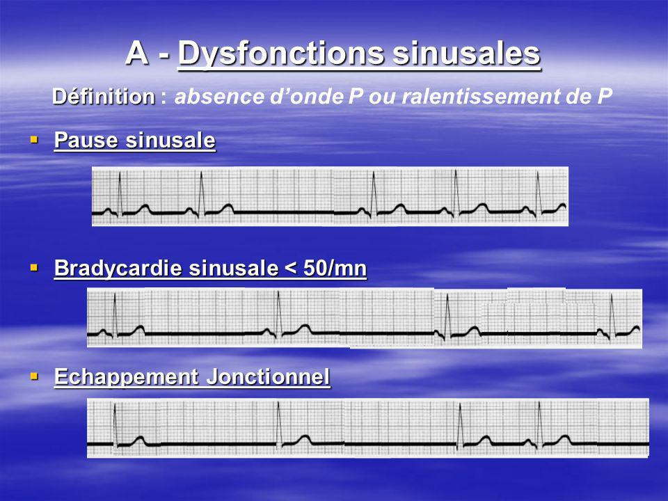 Troubles du rythme lents A - Dysfonctions sinusales