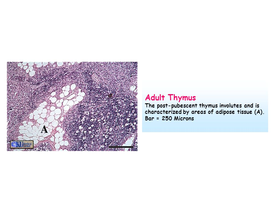 Adult Thymus The post-pubescent thymus involutes and is characterized by areas of adipose tissue (A).