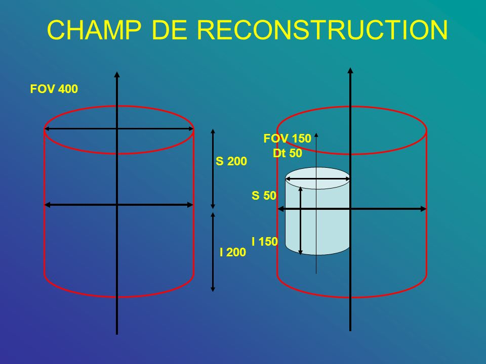 CHAMP DE RECONSTRUCTION