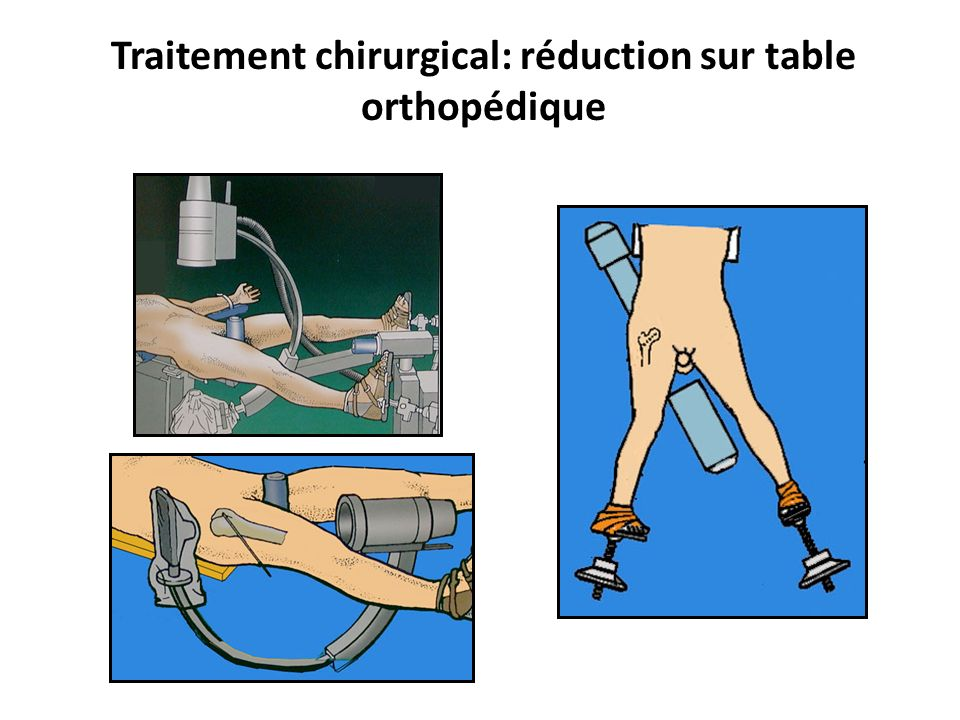 Traitement chirurgical: réduction sur table orthopédique