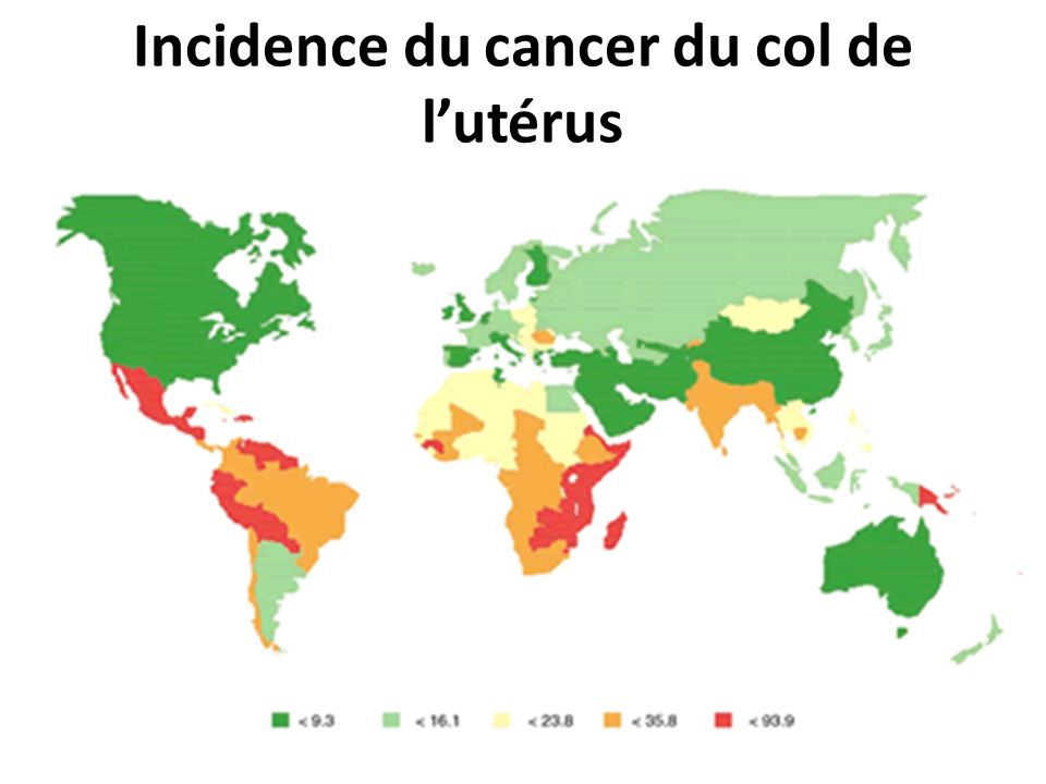 Incidence du cancer du col de l'utérus