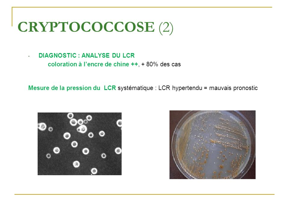 CRYPTOCOCCOSE (2) DIAGNOSTIC : ANALYSE DU LCR