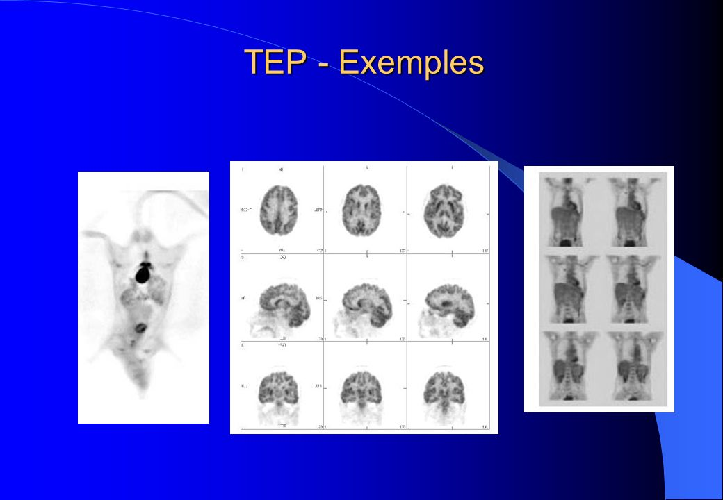 TEP - Exemples