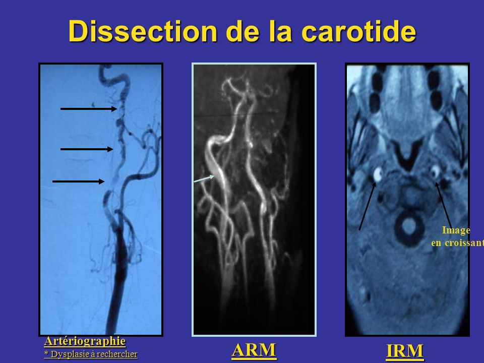 Dissection de la carotide