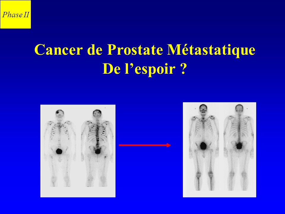 Cancer de Prostate Métastatique