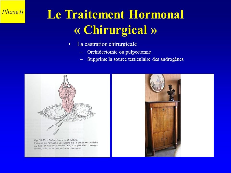 Le Traitement Hormonal « Chirurgical »