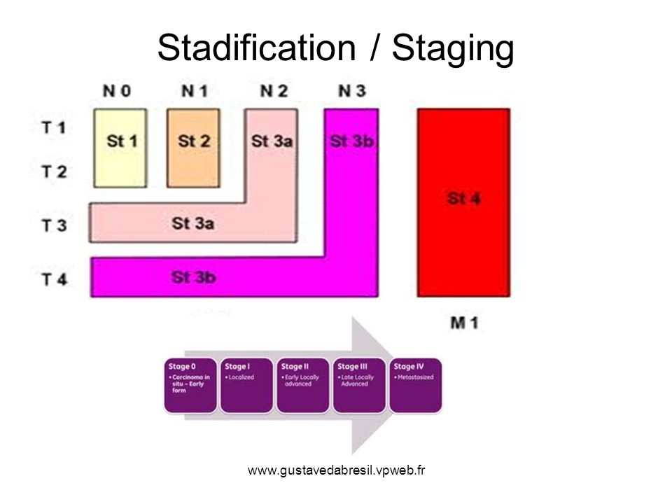 Stadification / Staging