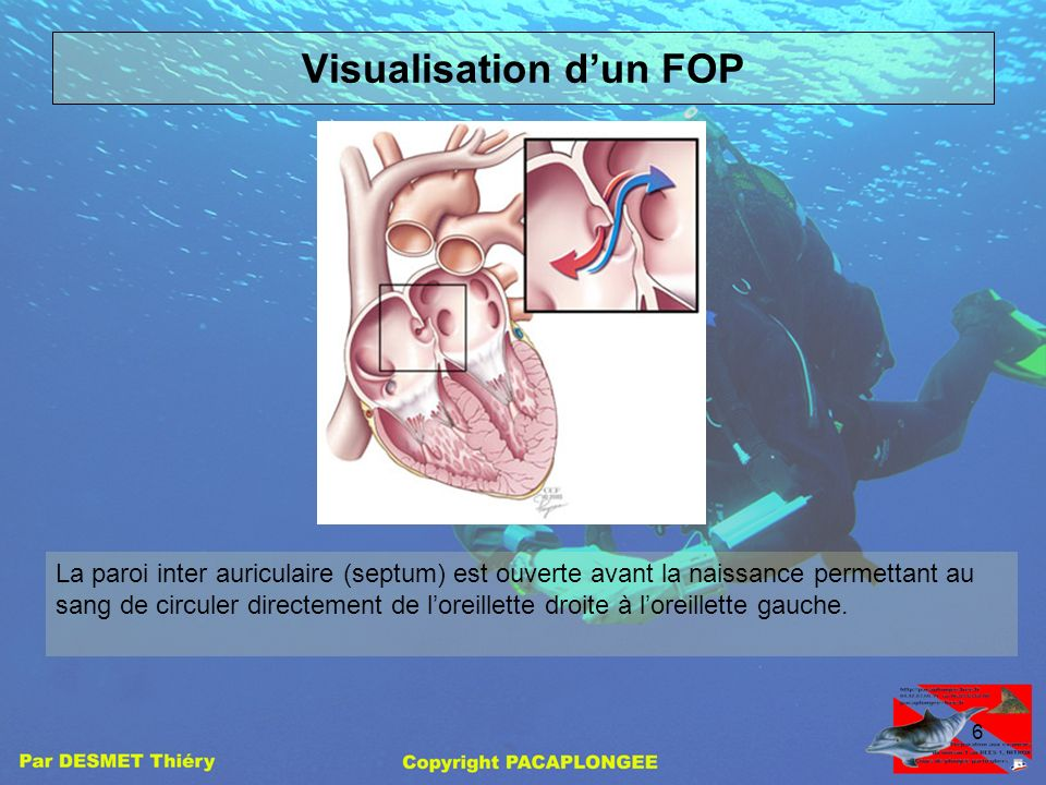 Visualisation d'un FOP