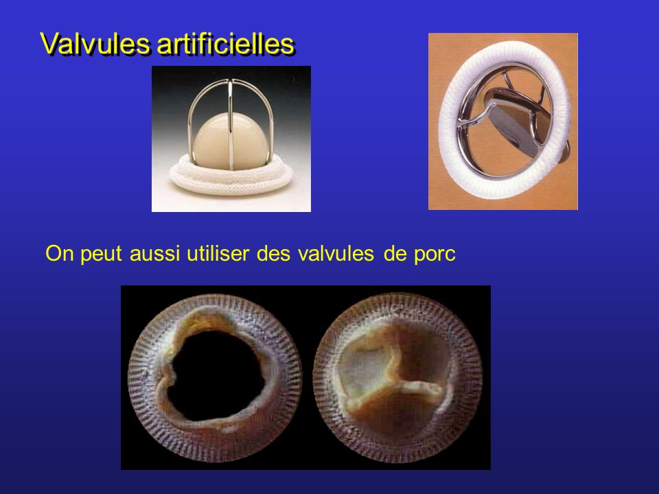 Valvules artificielles