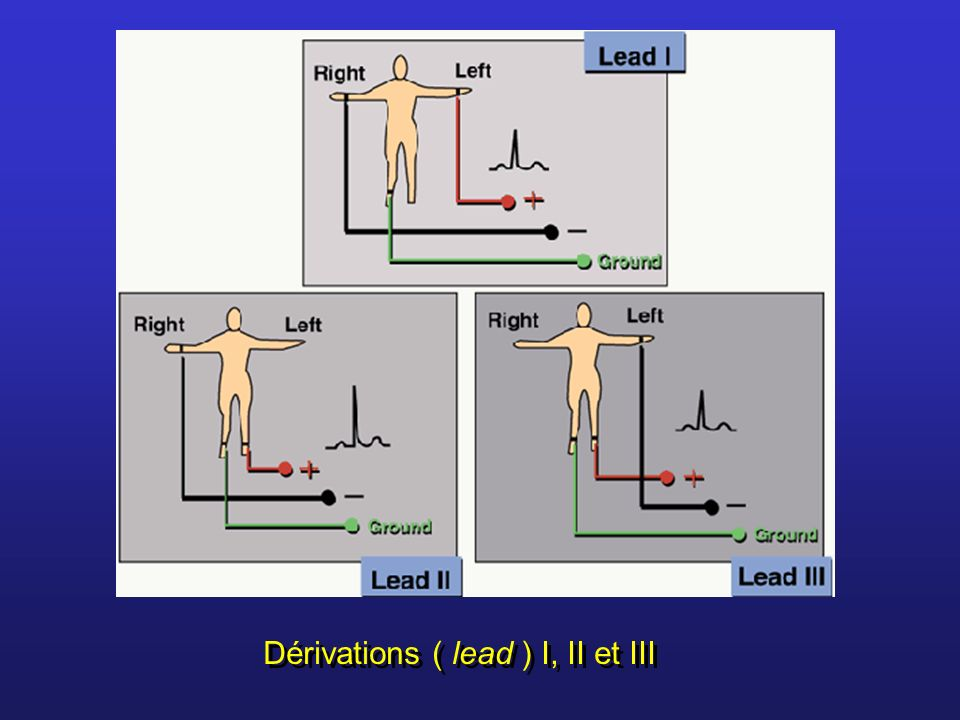 Dérivations ( lead ) I, II et III