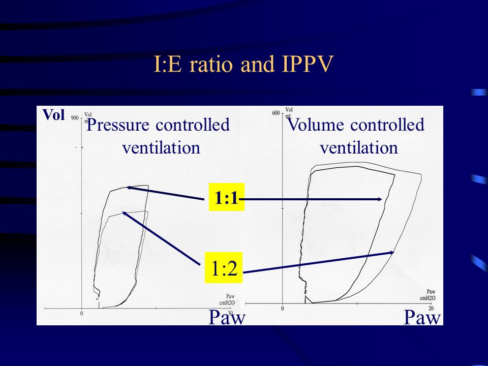 I:E ratio and IPPV 1:2 Paw Paw Pressure controlled ventilation