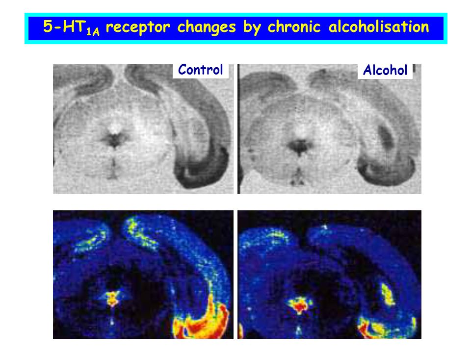 5-HT1A receptor changes by chronic alcoholisation