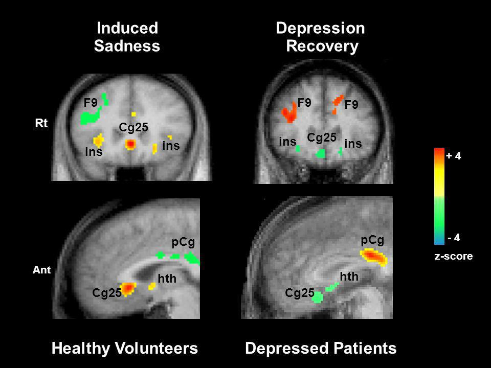 Induced Sadness Depression Recovery Healthy Volunteers