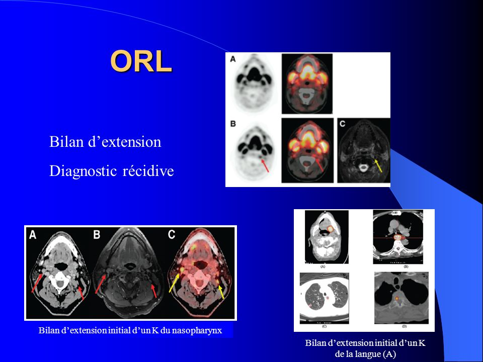 ORL Bilan d'extension Diagnostic récidive