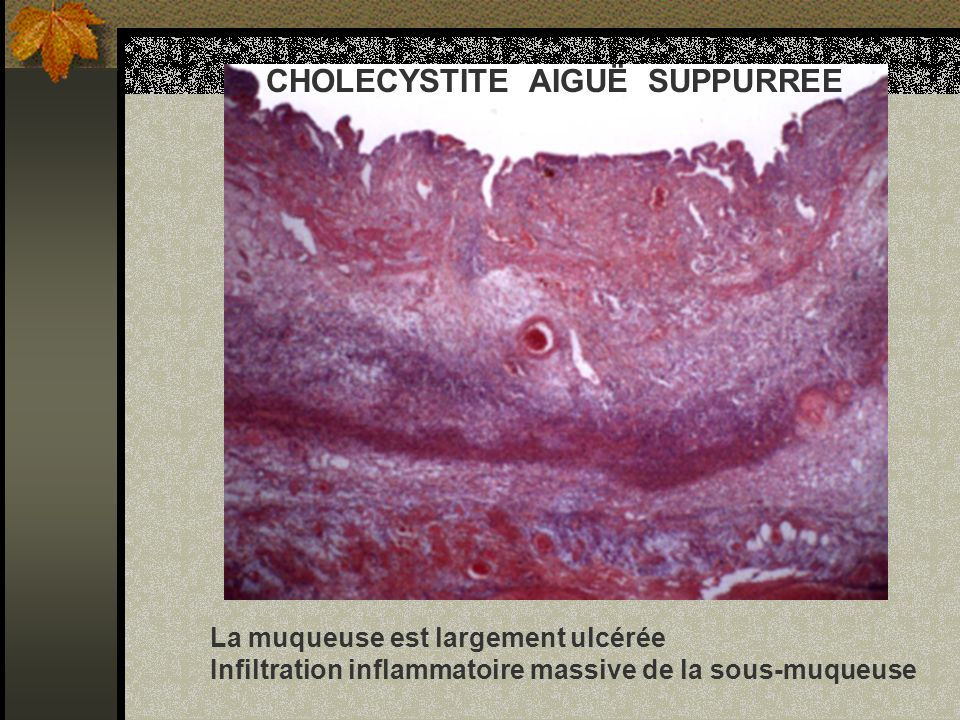 CHOLECYSTITE AIGUË SUPPURREE
