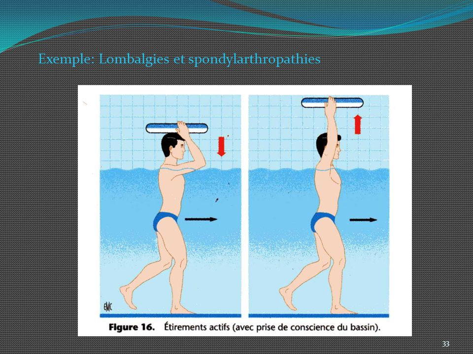 Exemple: Lombalgies et spondylarthropathies