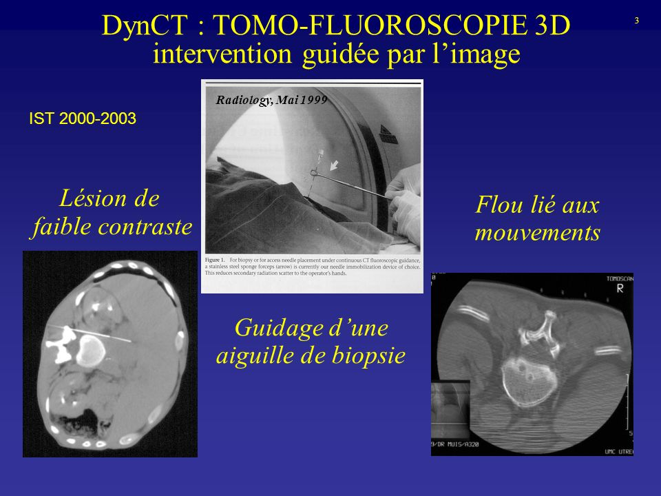 DynCT : TOMO-FLUOROSCOPIE 3D intervention guidée par l'image