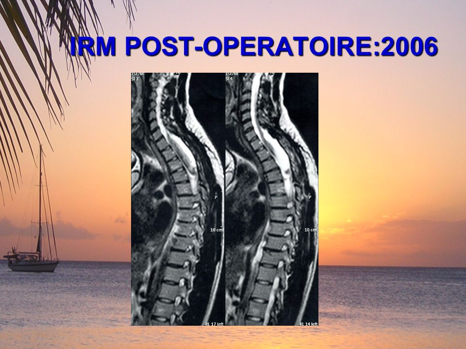 IRM POST-OPERATOIRE:2006