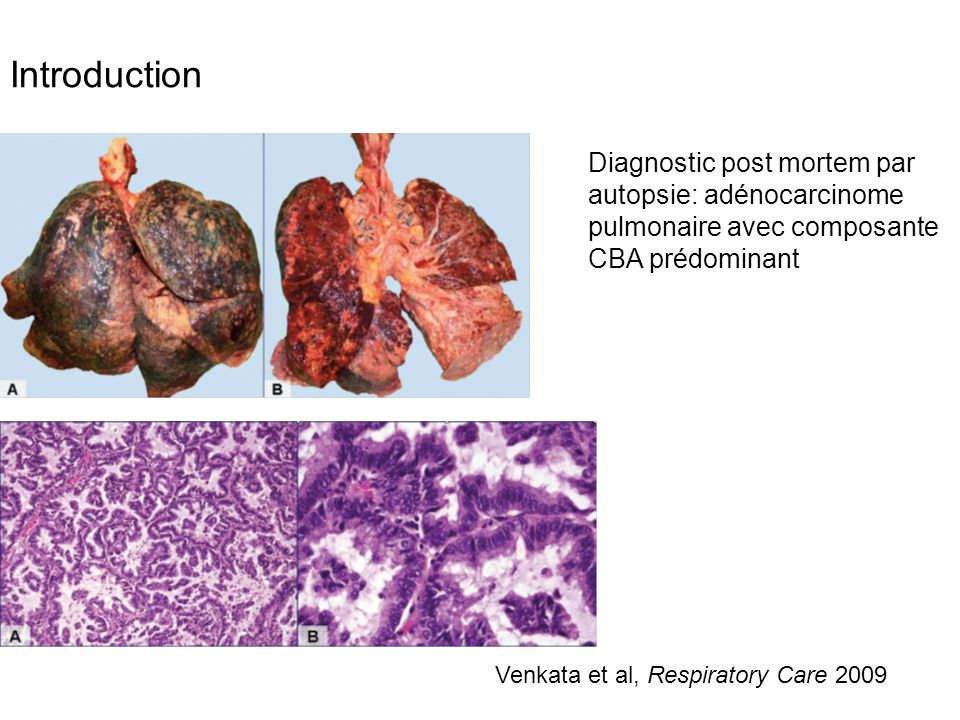 Introduction Diagnostic post mortem par autopsie: adénocarcinome pulmonaire avec composante CBA prédominant.
