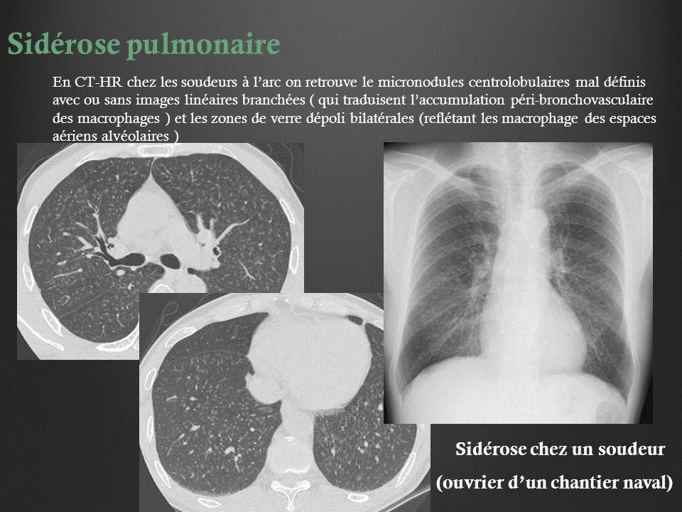 trois micro nodules des bases pulmonaires