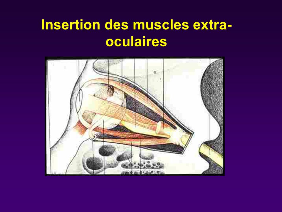 Insertion des muscles extra-oculaires