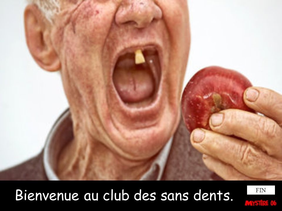 Bienvenue au club des sans dents.