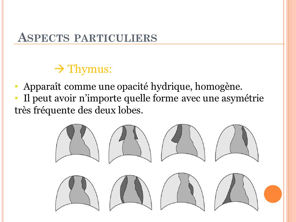 Aspects particuliers  Thymus: