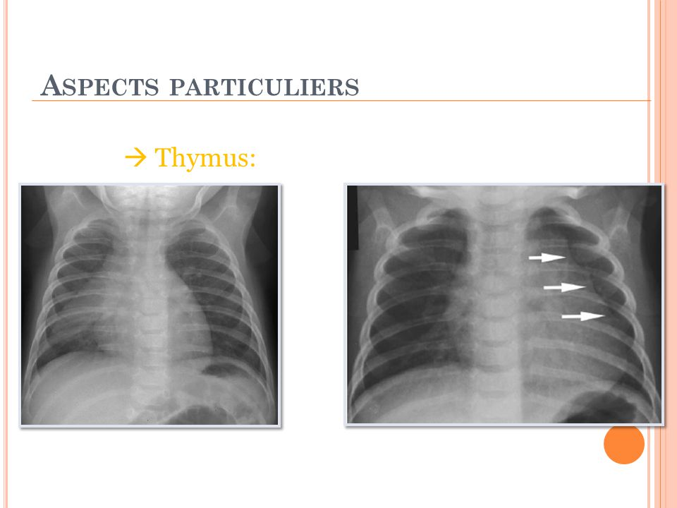 Aspects particuliers  Thymus: Signe de la vague