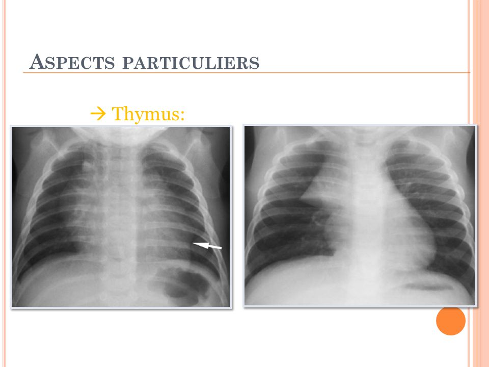Aspects particuliers  Thymus: Signe du raccordement